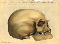 crania-americana 200